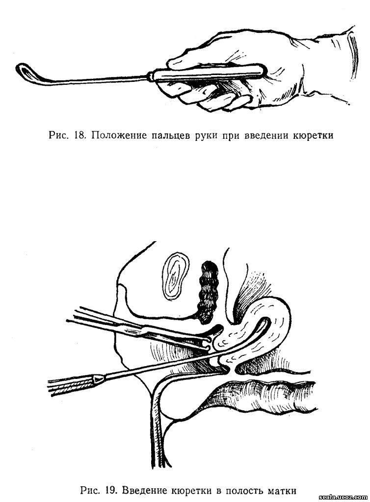 gruppovoe-zhestko-v-zhopu-orgii
