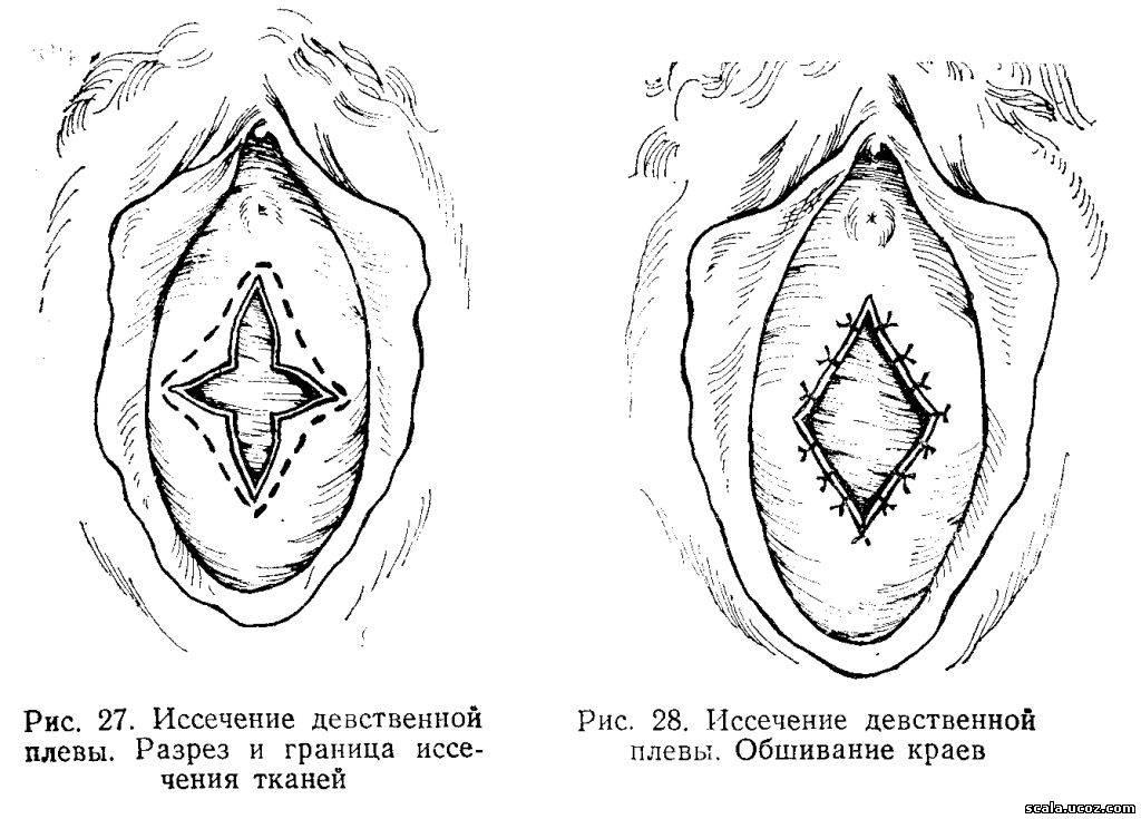 Плева Девственная фото