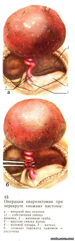 Овариэктомия фото