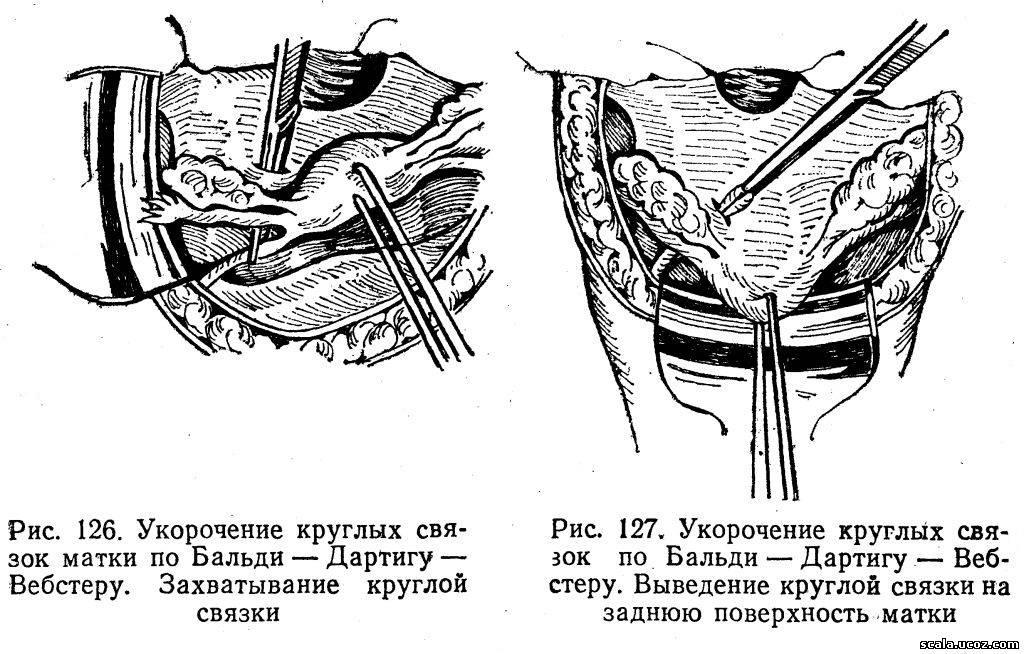 Кольпотомия