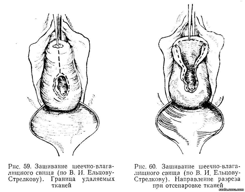Лейкоциты из уретры шейки матки влагалища