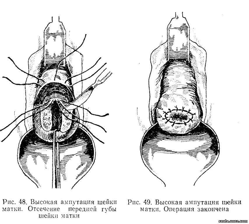 Высокая ампутация шейки матки и беременность