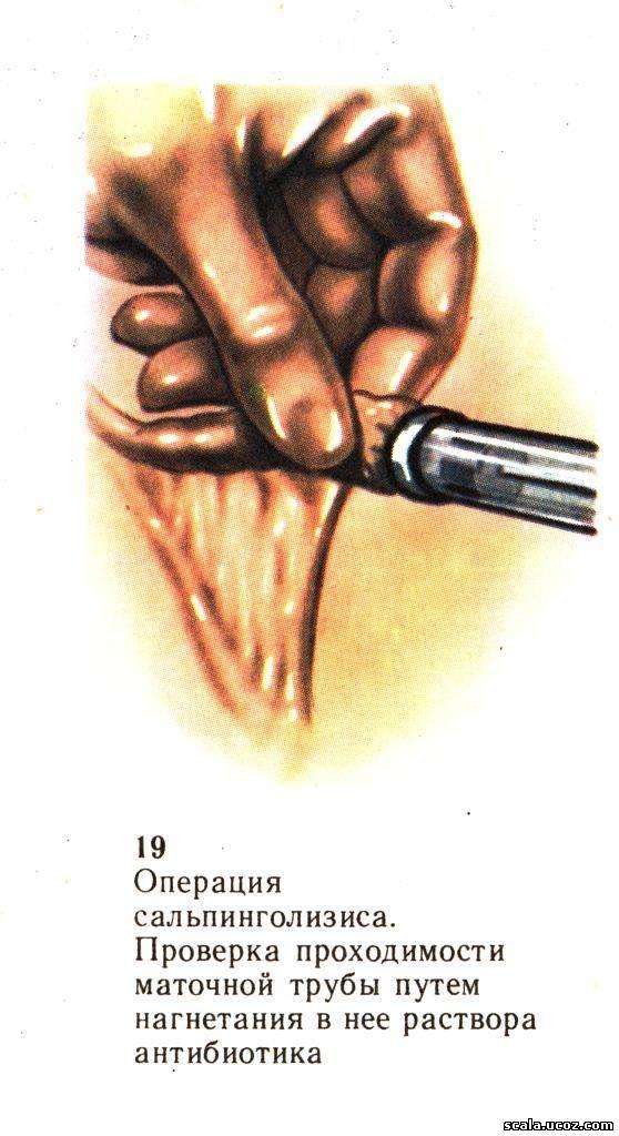 Сальпинголизис фото