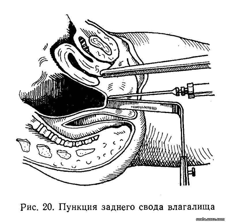 pribor-dlya-osmotra-vlagalisha