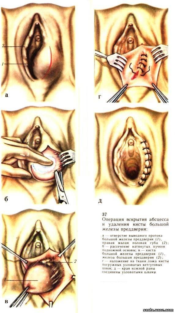 Секс после удаления бартолиновой кисты