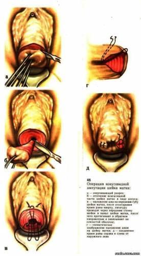 effektivniy-metod-lecheniya-vaginalnogo-bakterioza